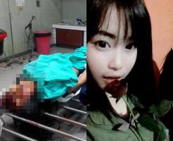 【グロ画像】美少女の事故死体 生前と比べると無残すぎる・・・