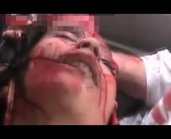 【少女グロ】女の子爆弾で頭吹っ飛んだ・・・病院連れていく ※動画あり