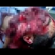 【閲覧注意】ショットガンで自殺を図り顔がグチャグチャに破壊されるもまだ息がある男性