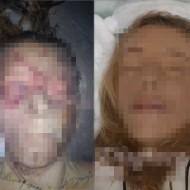 【女死体】事故死女の葬式するから遺体修復してみた・・・ ※グ◯画像