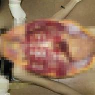 【閲覧注意】レイプされた美女の死体を解剖・・・マ○コの中まで調べてみた