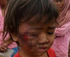 【閲覧注意】可愛い4歳の幼女が受けた悲惨な虐待がこれ・・・