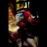 【超グロ注意】狂犬に襲われ顔の皮を全て食べられた女性・・・