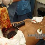 【グロ死体】グラインダー(研削盤)が生身の体に触れたらどうなると思う? ※閲覧注意