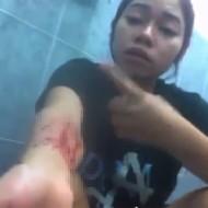 【実況中継】メンヘラ女が自分の身体を切り刻みながら実況・・・