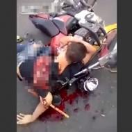 【閲覧注意】バイクで転倒→腕がもげて意識がしっかりしてた結果・・・