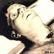 【暗殺】ジョン・F・ケネディ大統領の死体写真 思ったよりグロかった・・・ ※グロ画像