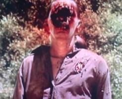 【閲覧注意】ショットガンで自殺した男の恐ろしい姿・・・