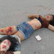 【美女 死体】デニムショートパンツの女の子が事故に遭ったら太ももと頭が・・・ ※グロ画像