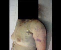 【グロ画像】顔だけ骨になって死んでる女の子が生前かわいかったかどうか判別してくれ・・・