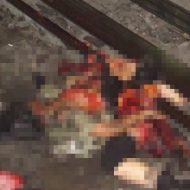 【グロ画像】電車に跳ねられた妊婦→ぐちゃぐちゃ死亡 中の赤ちゃん→損傷少ないけど飛び出して死亡 ※閲覧注意