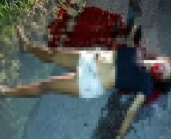 【グロ画像】強盗に抵抗した10代の妊婦が・・・・・・ ※閲覧注意