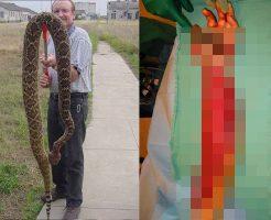 【グロ画像】筋肉を壊死させる猛毒を持つガラガラヘビに噛まれたらどうなるかよく分かる実際の画像・・・ ※閲覧注意