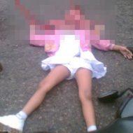 【ロリ 死体】子供が事故して頭カチ割れても脳みそ排出量は大人より少ない事が判明 ※グロ画像