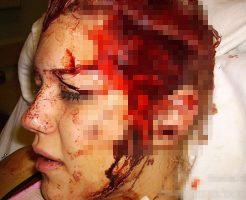 【グロ画像】警察犬に頭皮を引き裂かれた女の子 頭の皮が完全にめくれとる・・・ ※閲覧注意