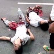 【グロ動画】事故に捲き込まれて助かったけど脚潰れて身動き取れん助けて・・・
