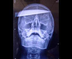 【グロ画像】頭に包丁刺さって血まみれで倒れてる死人の第一発見者になったけど質問ある? ※閲覧注意