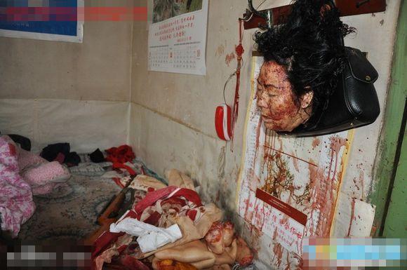 【グロ画像】女の子が全身の皮剥がされて臓器取り出されてて最悪にカオスな状態になってるんやが・・・in中国