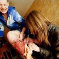 【閲覧注意】人体を腐らす悪魔の麻薬「クロコダイル」により白骨化していく男