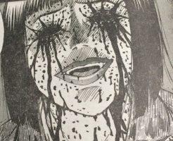 【マジキチ】精神病院に運ばれた患者から目を離した隙に自分の目をえぐり出してたんだが・・・ ※グロ画像
