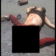 【グロ画像】270度ぐらい股開いて死んでる女の子の股間からアカンもんいっぱい出てる・・・ ※閲覧注意
