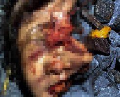 【グロ画像】列車に轢かれた女の肉塊が100メートル散らばってる現場はコチラ 閲覧注意
