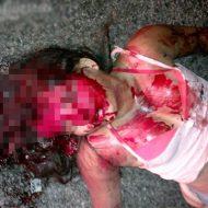 【女性死体】飲酒運転による事故で死亡した脳漿炸裂ガールズ。生前の写真とともに…※グロ画像