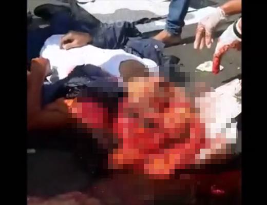 【事故 死体】全部でちゃった・・・トラックに轢かれて頭から五臓六腑出てるカオスの死体が恐ろし過ぎる。※グロ動画