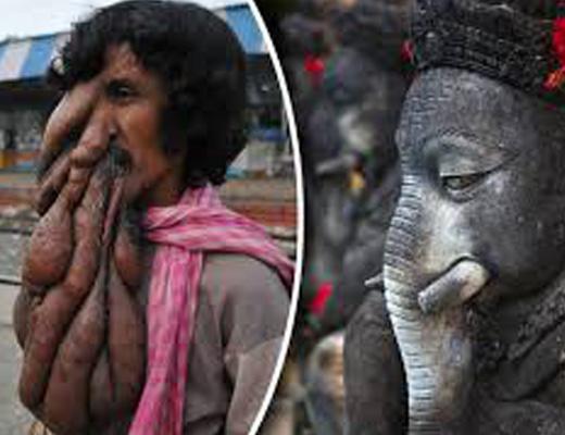 【奇形 閲覧注意】インド版エレファントマン、神と崇められる・・・