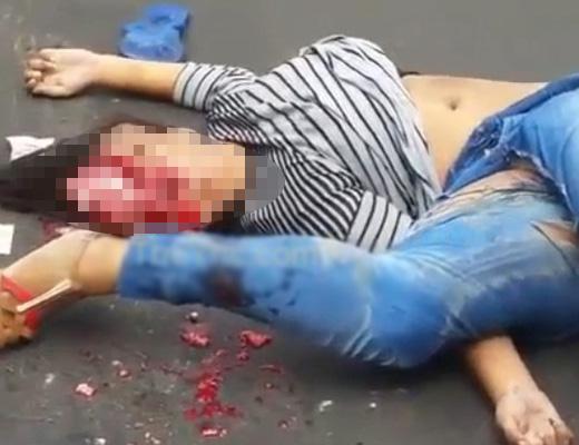 【女 死体】くぱぁーしちゃった系女子 事故で頭が御開帳して脳みそを見世物されてしまうw