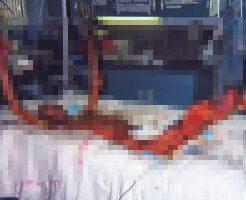 【グロ注意】東海村JCO臨界事故の画像を見て原子力について考えるスレはコチラ