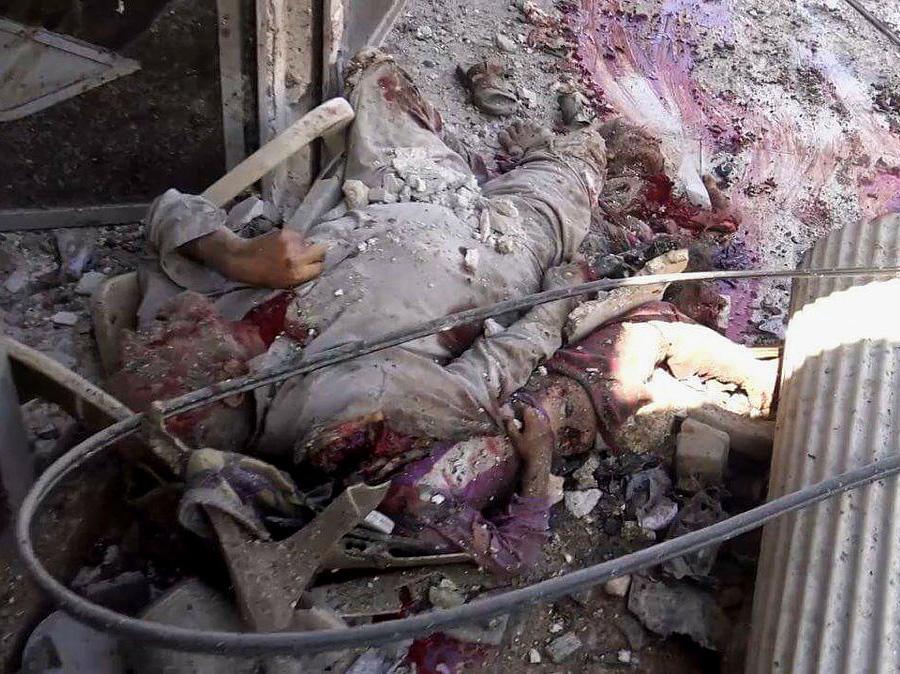 【超閲覧注意】アメリカ×ロシア代理戦争地のシリア空爆犠牲者が子供ばかりな件