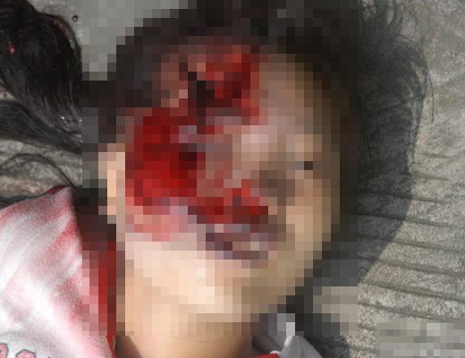 【グロ画像】飛び降り自殺した女子校生のマ●コをくぱあしてみた