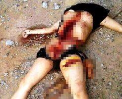 【グロ画像】臓器密売目的で殺害された女の遺体の腹割かれて股間もぱっくり開かれてるんだが・・・