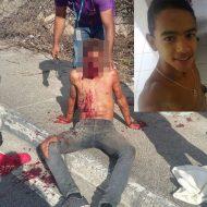 【グロ画像】15歳イケメンボーイがバイク事故して顔に大穴開けて死亡した画像で安全運転喚起してみる