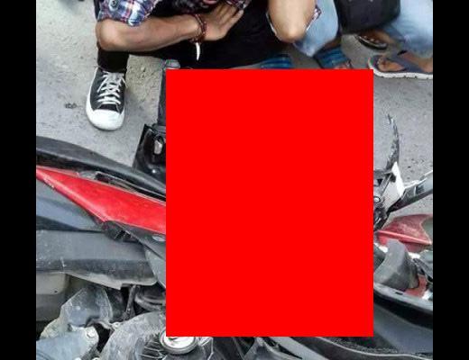 【グロ 画像】短パンでバイク乗るの最高っすw → 事故した結果がコレ