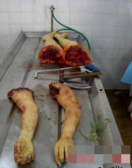 【グロ 画像】レ●プされてバラバラにされたり、死体の損壊激しい女の子の画像貼ってく
