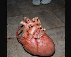 【グロ動画】事故で体から飛んで行った心臓がまだバクバク動いてるんやが・・・持ち主ぐちゃぐちゃやのに※閲覧注意