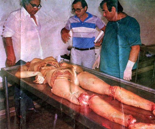 【グロ画像】レ●プ→四肢切断された女の死体をつなぎ合わせてみた ※閲覧注意