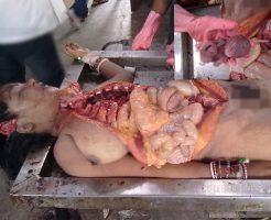 【妊娠解剖】可愛いJDの死体手に入れたからくぱぁ~してみた結果→中から赤ちゃん出てきたんだが・・・ ※エログロ画像