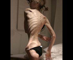 【エログロ】拒食症の美人モデルのヌードが美しいのに閲覧注意な件・・・ ※動画