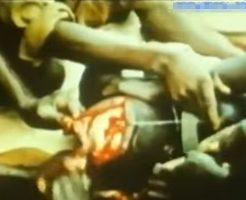 【グロ動画】アフリカ人がやってた脳手術が完全に人体実験みたいで受けたくなさすぎる件w ※閲覧注意