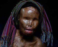【アシッドアタック】硫酸やら塩酸を顔面にぶっかけられて女の人生を失った女性達の御尊顔を貼ってく ※グロ画像