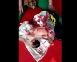 【グロ動画】中国のお医者さん帝王切開のやり方を間違え赤ちゃんの首切る痛恨のミス 医療ミスっていうレベルじゃね~ぞ・・・ ※閲覧注意