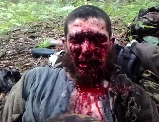 【グロ動画】えっ?この状況から入れる保険があるんですか?顔面血だらけ兵士さんにインタビューしてガン保険付けるかヒアリングしていくw ※閲覧注意
