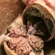 【解剖動画】ノコギリギコギコからの頭蓋骨くぱぁ~→脳みそぷるん 銃で撃たれた死体の人体解剖映像がグロ過ぎwww ※グロ動画