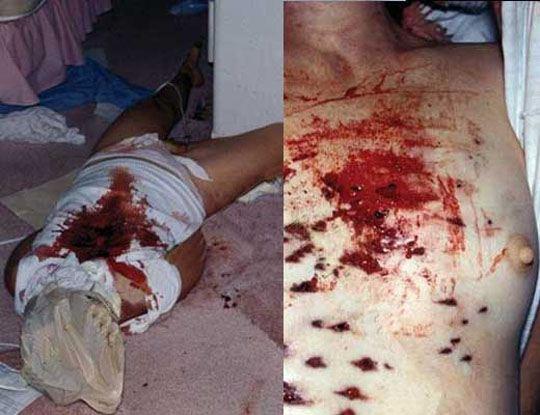 【女拷問殺人】縛って殴られ60回刺され電気流されビニール袋で窒息させられ~の首絞めされてから殺される女の子とか・・・ ※エログロ画像