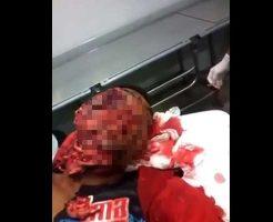 【顔面崩壊】ズタズタに顔面を切り刻まれて顔面カルパッチョになってしまった男性のご尊顔が酷過ぎる・・・ ※グロ動画
