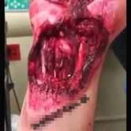 【大量出血】手首くるっくるっで負傷した人の筋肉とスジの収縮を確認して解剖の勉強をするスレはこちら ※グロ動画