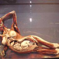 【妊婦 解剖】腹ボテ女の子の死体をクパァ~してみた結果 羊水に漬かったまんまの赤さん出てきたやが・・・ ※グロ画像